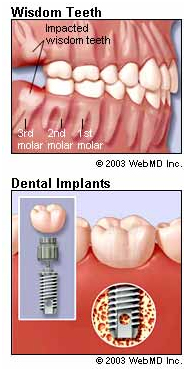 http://img.webmd.com/dtmcms/live/webmd/consumer_assets/site_images/articles/health_and_medical_reference/dental_health/dental_health_oral_surgery.jpg